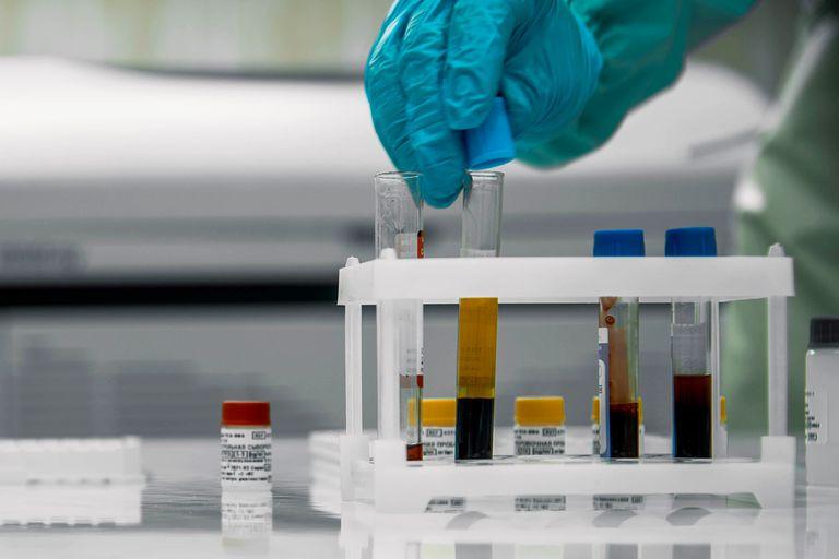 coronavirus-en-argentina:-casos-en-chicoana,-salta-al-26-de-julio